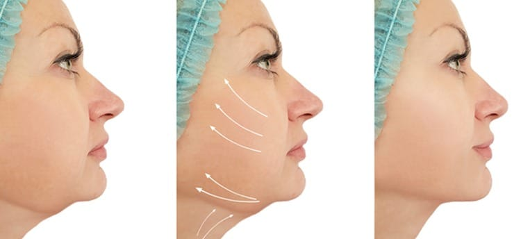 liposuccion visage Tunisie